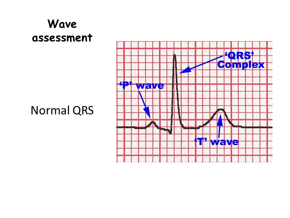 Wave assessment Normal QRS