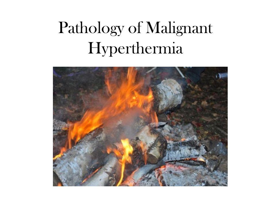 Pathology of Malignant Hyperthermia