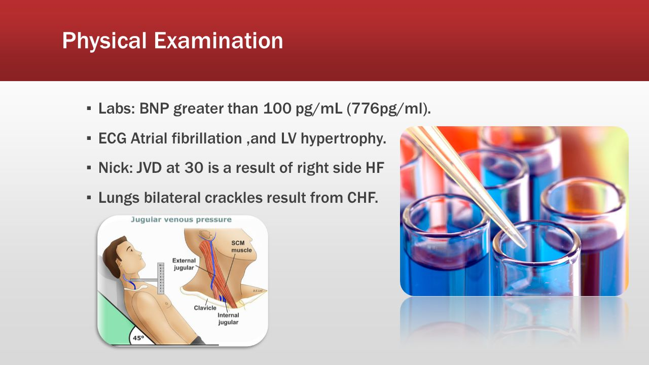 Physical Examination Labs: BNP greater than 100 pg/mL (776pg/ml).