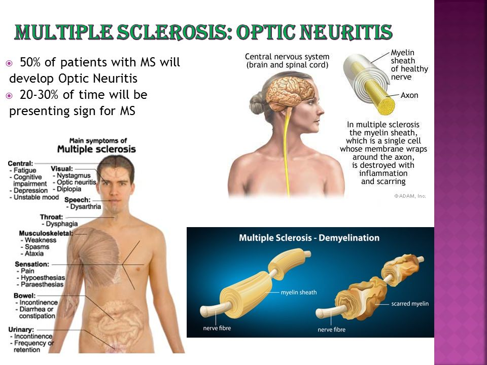 Multiple Sclerosis: Optic Neuritis