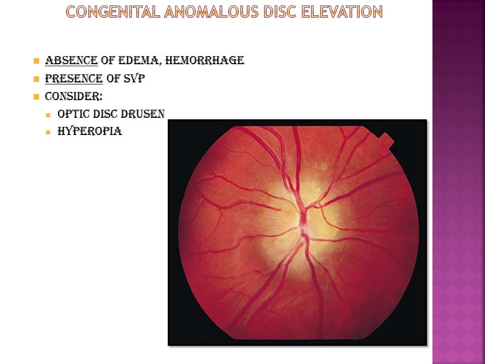 Congenital Anomalous Disc Elevation