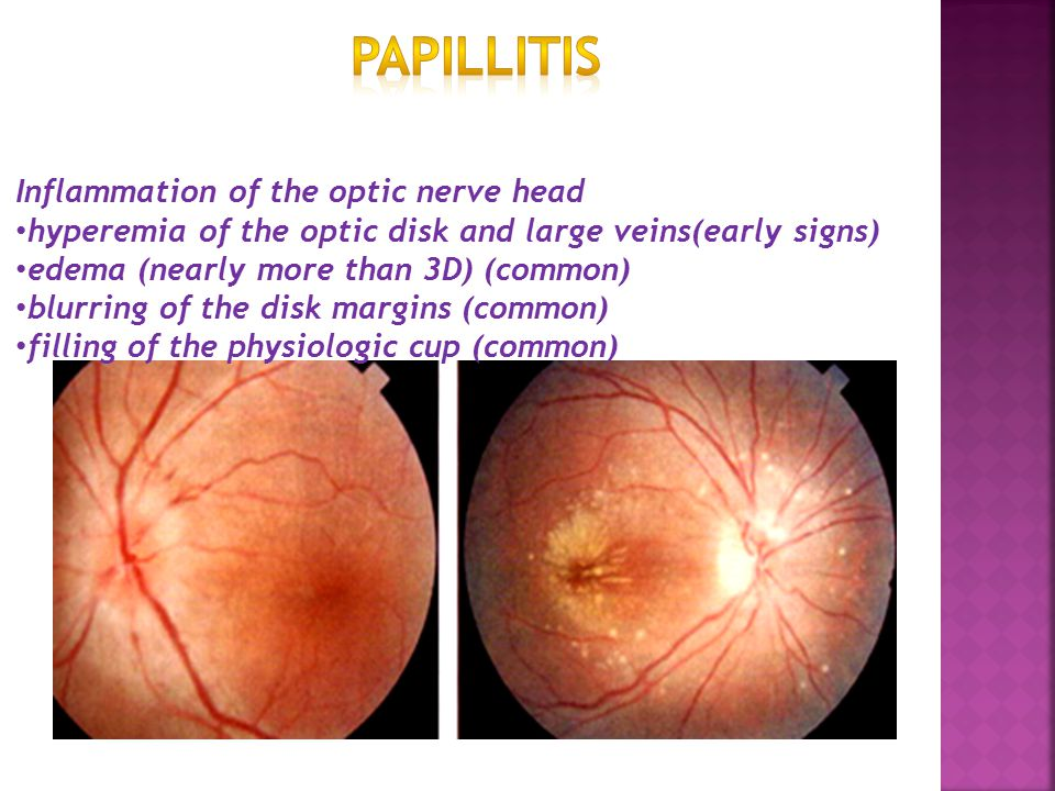 Papillitis Inflammation of the optic nerve head