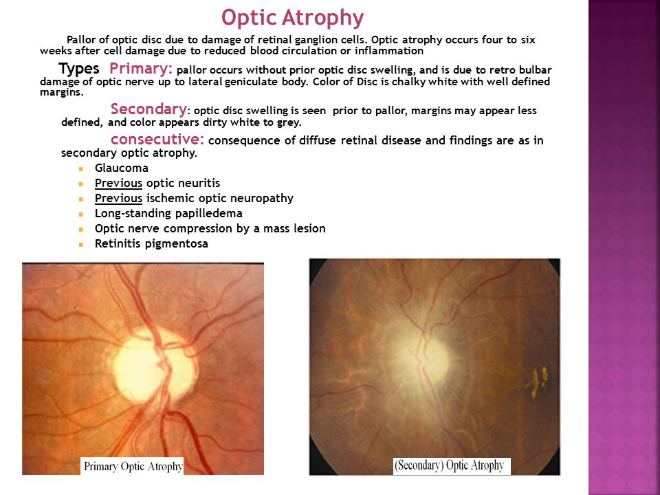Optic Atrophy