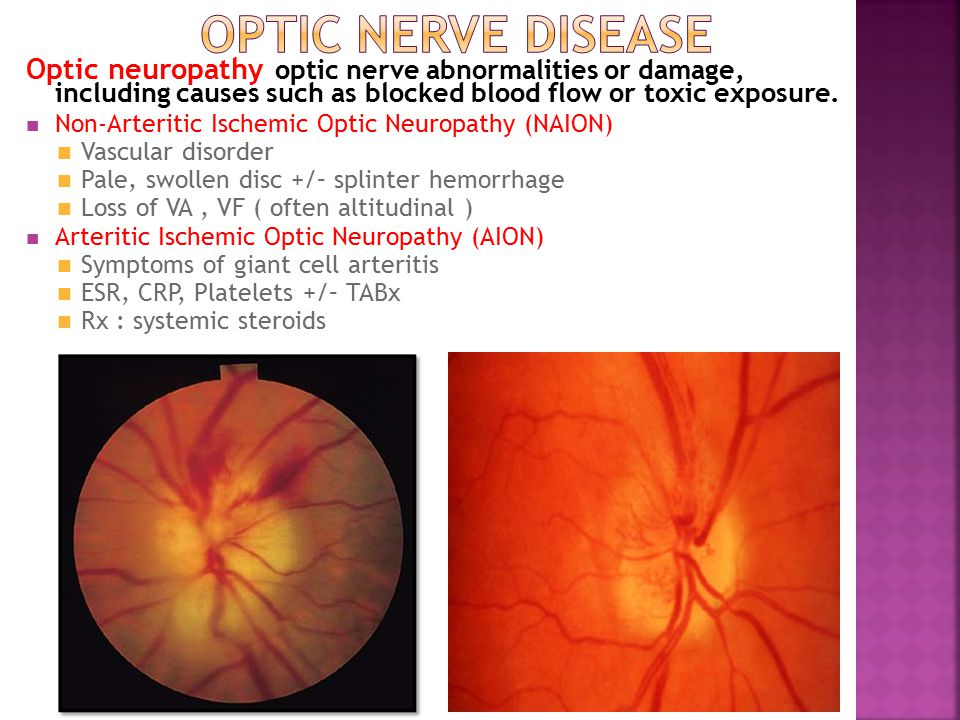 Optic Nerve Disease Optic neuropathy optic nerve abnormalities or damage, including causes such as blocked blood flow or toxic exposure.