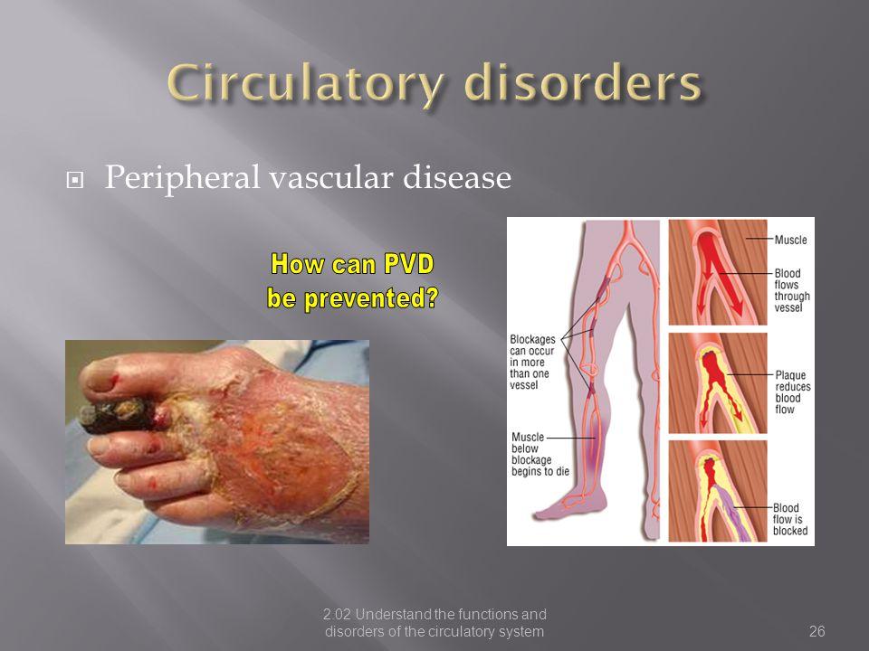 Circulatory disorders