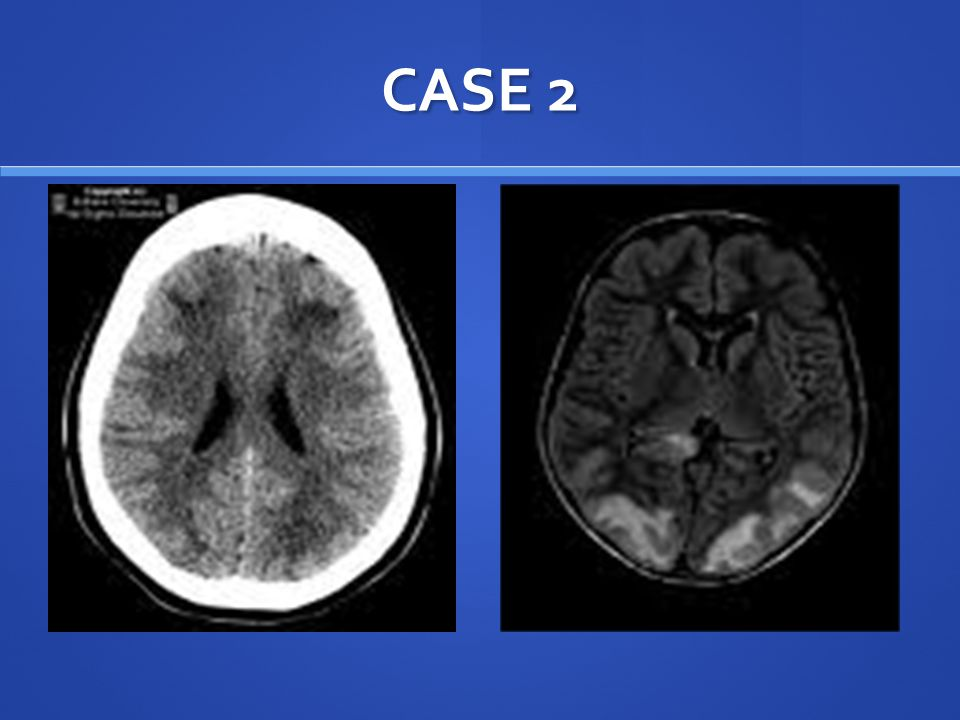 CASE 2 Head CT demonstrates multiple, bilateral, patchy foci of hypoattenuatin within subcortical white matter in the occipital regions.