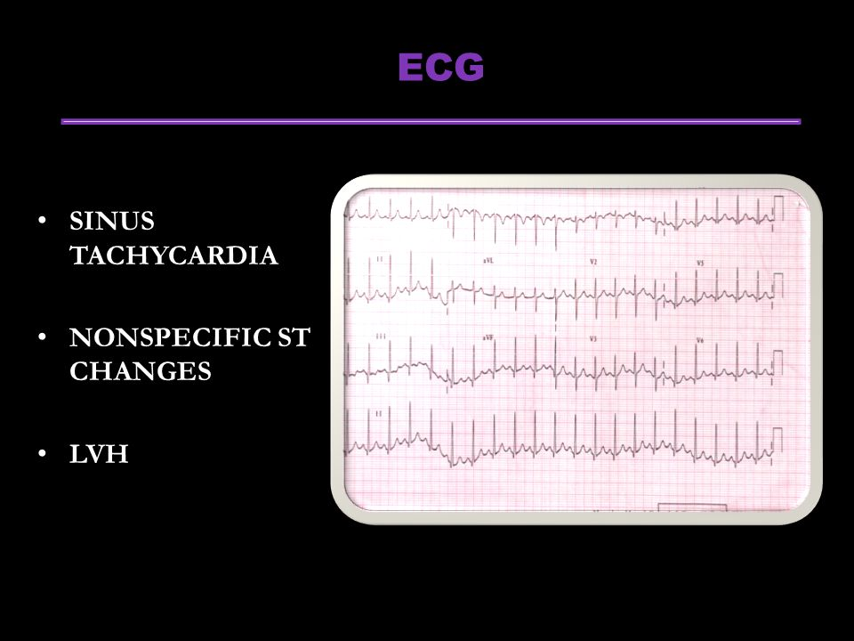 ECG SINUS TACHYCARDIA NONSPECIFIC ST CHANGES LVH