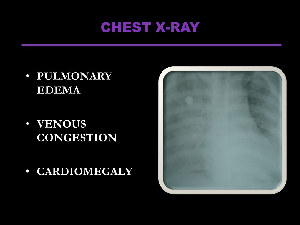 CHEST X-RAY PULMONARY EDEMA VENOUS CONGESTION CARDIOMEGALY