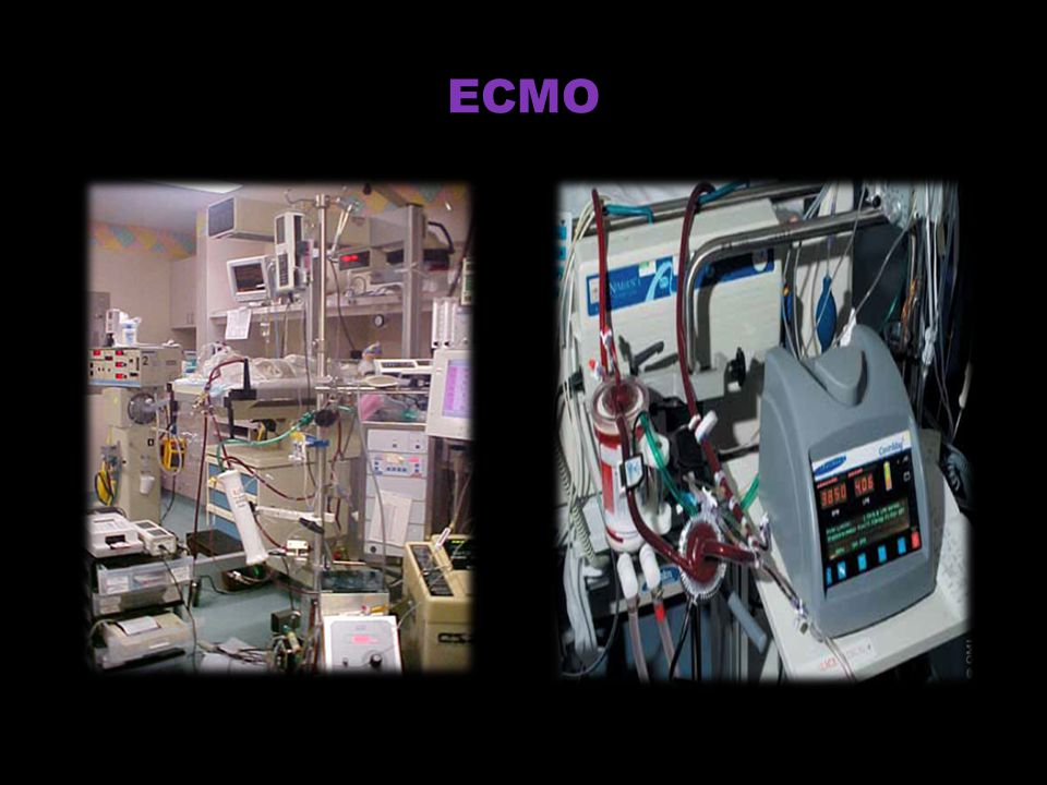 ECMO ECMO is cardio-pulmonary bypass pump used to induce Hypothermia and Oxygenation.