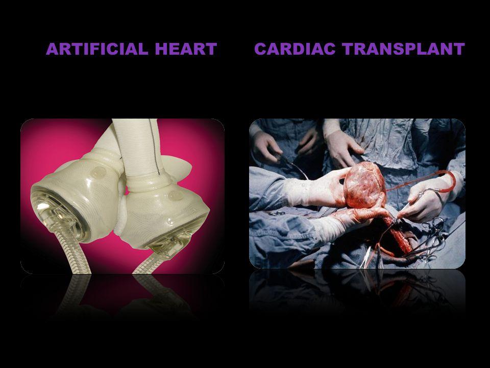 CARDIAC TRANSPLANT ARTIFICIAL HEART