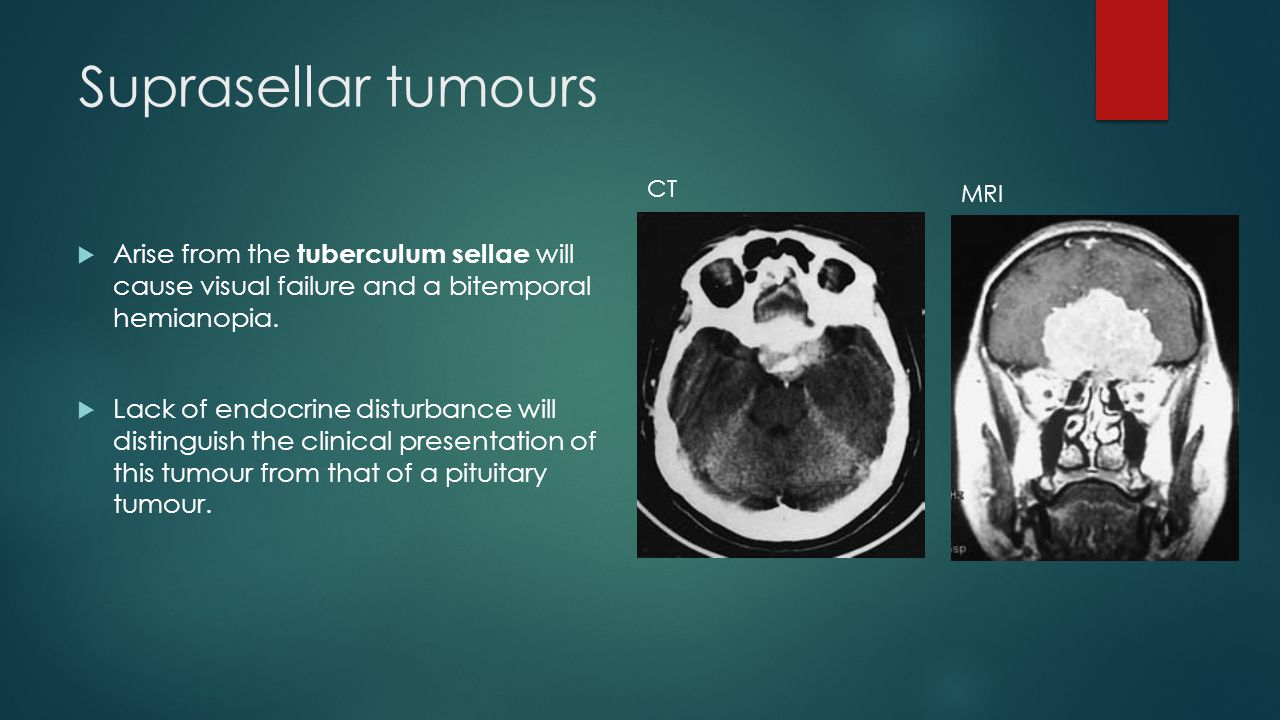 Suprasellar tumours CT. MRI. Arise from the tuberculum sellae will cause visual failure and a bitemporal hemianopia.