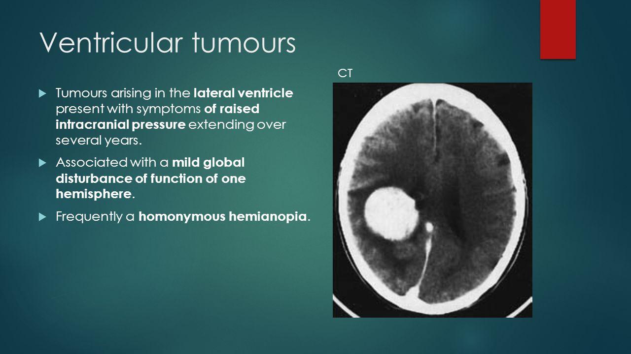 Ventricular tumours CT.