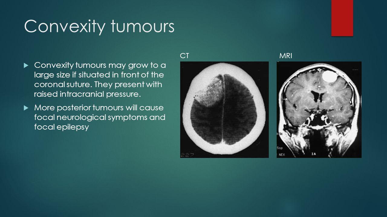 Convexity tumours CT. MRI.