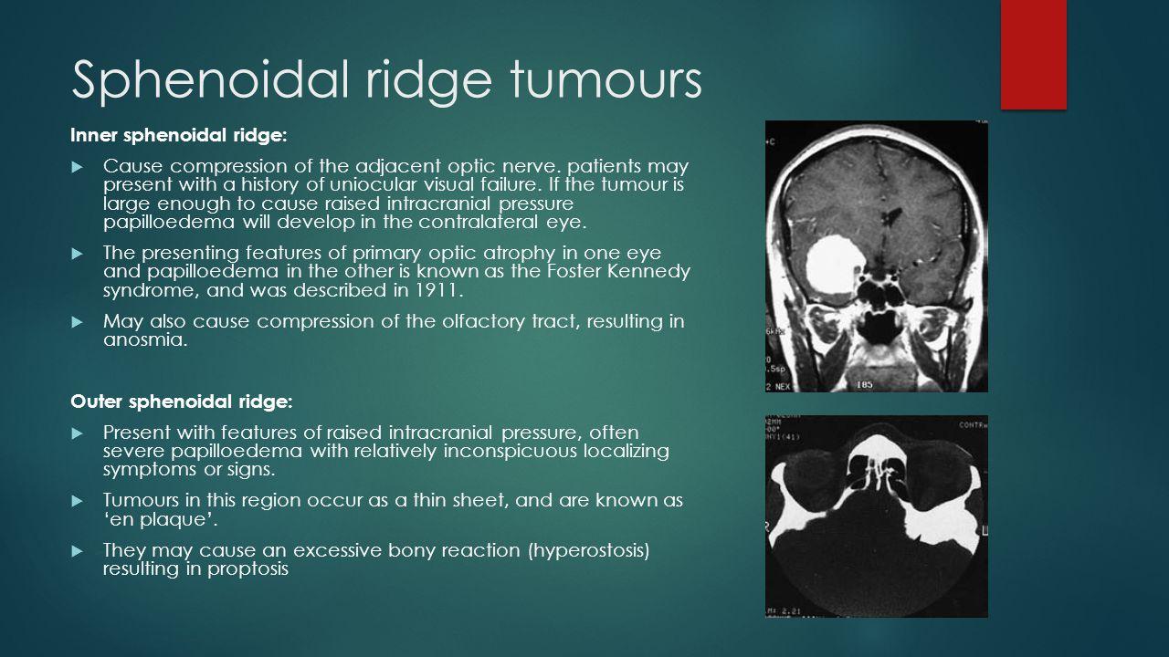 Sphenoidal ridge tumours