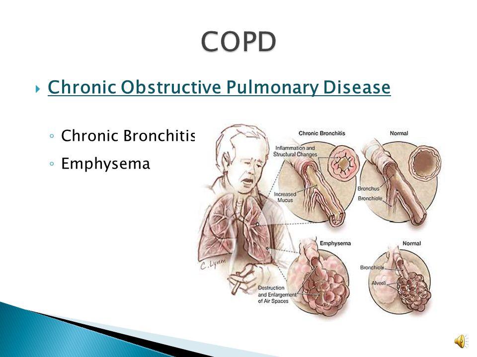COPD Chronic Obstructive Pulmonary Disease Chronic Bronchitis