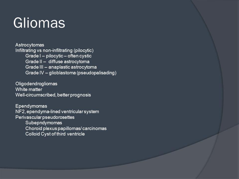 Gliomas Astrocytomas Infiltrating vs non-infiltrating (pilocytic)