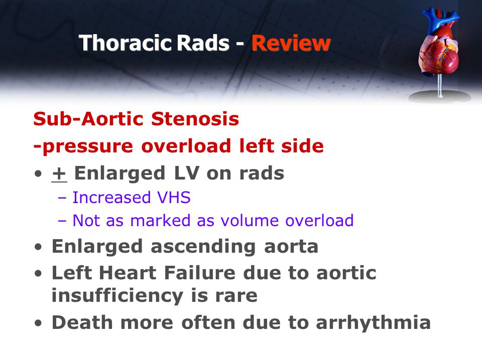 Thoracic Rads - Review Sub-Aortic Stenosis