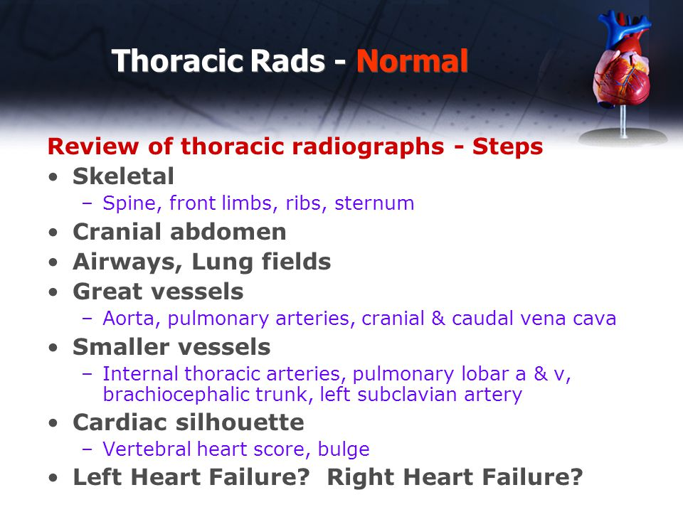 Thoracic Rads - Normal Review of thoracic radiographs - Steps Skeletal