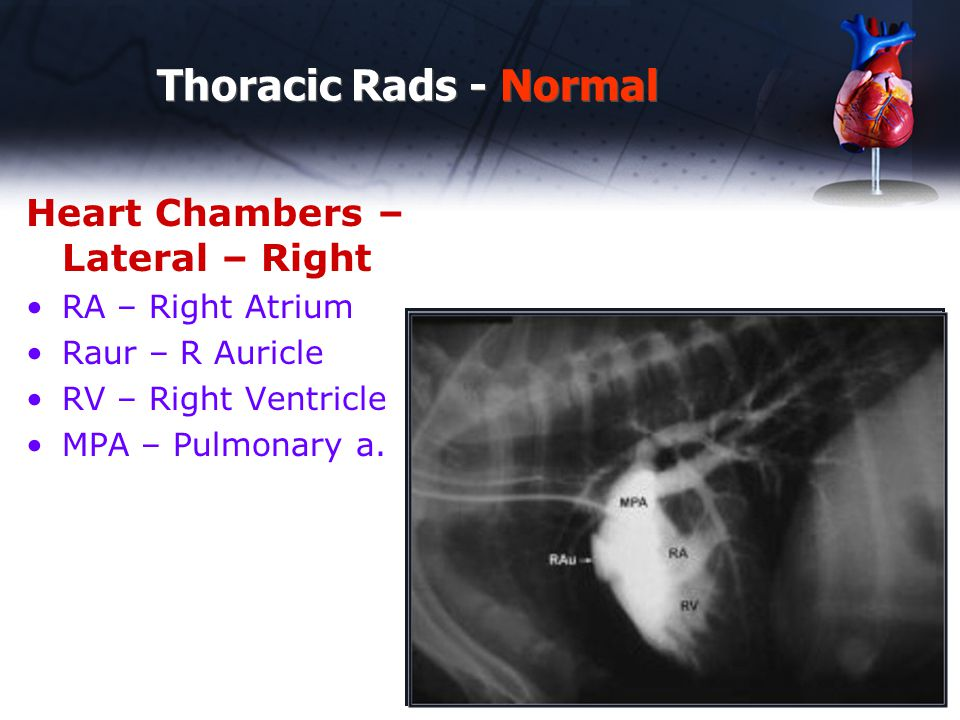 Thoracic Rads - Normal Heart Chambers – Lateral – Right