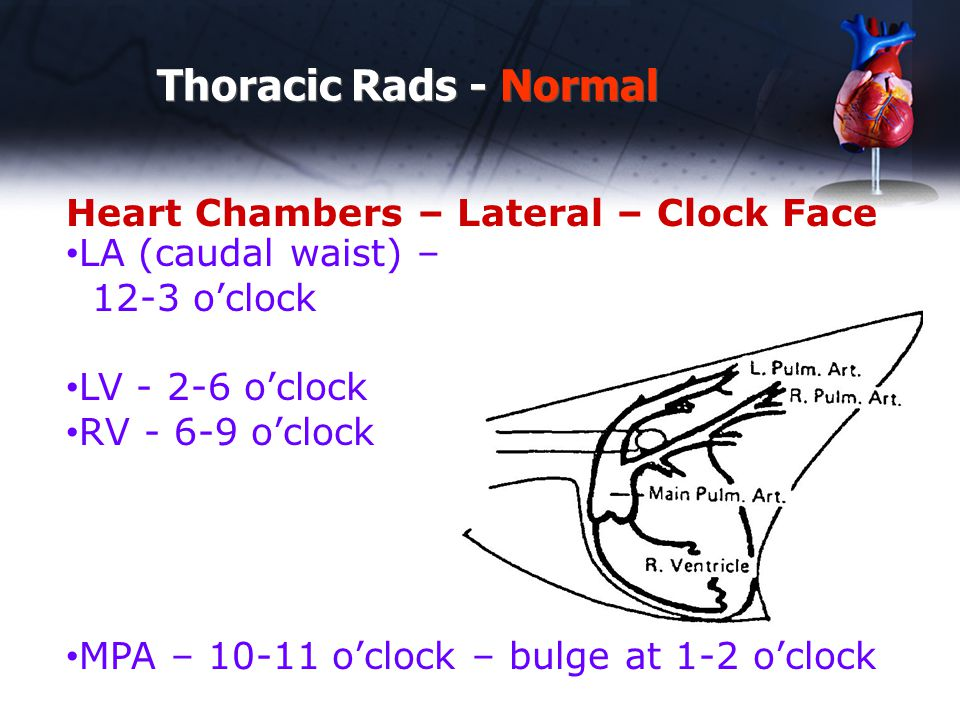Thoracic Rads - Normal Heart Chambers – Lateral – Clock Face