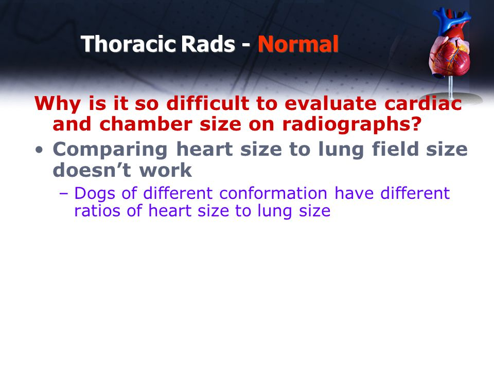 Thoracic Rads - Normal Why is it so difficult to evaluate cardiac and chamber size on radiographs
