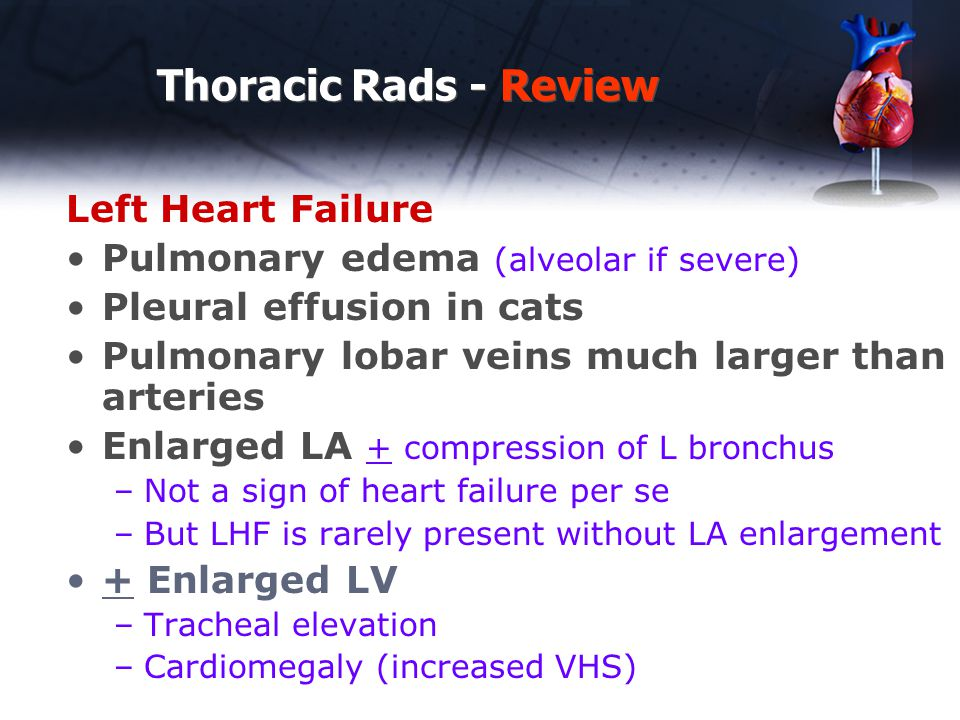 Thoracic Rads - Review Left Heart Failure