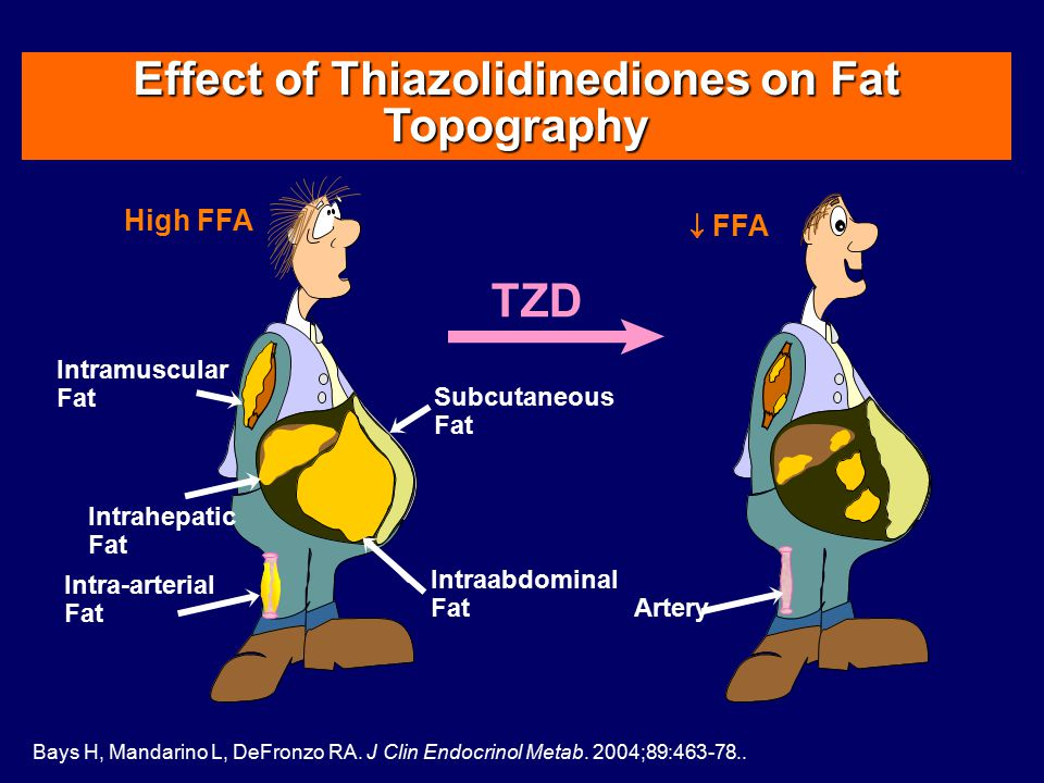Effect of Thiazolidinediones on Fat Topography