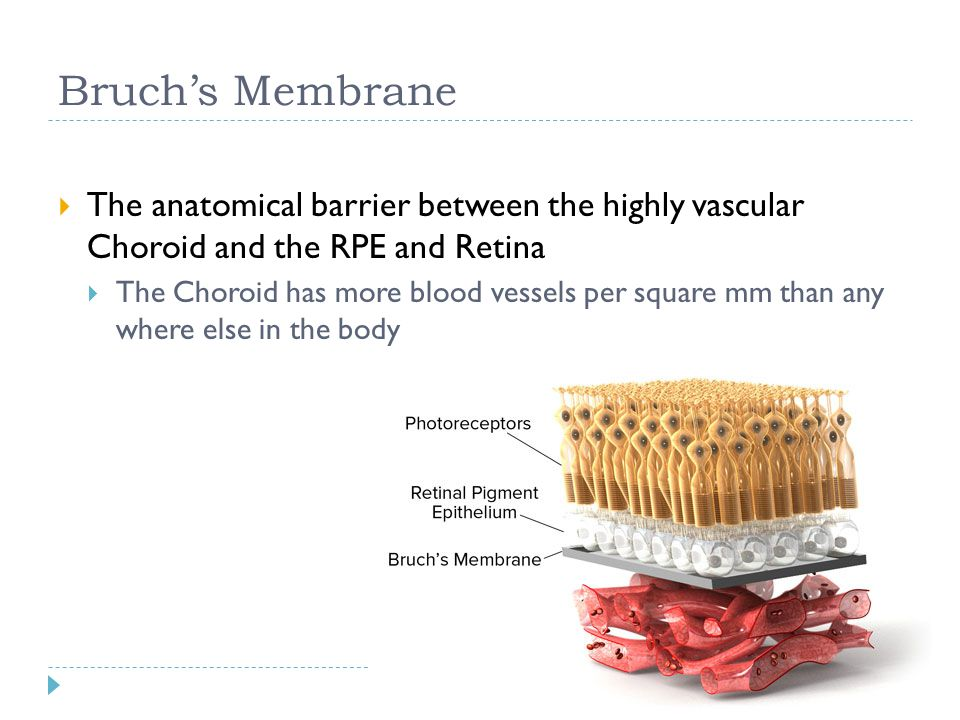 Bruch's Membrane The anatomical barrier between the highly vascular Choroid and the RPE and Retina.