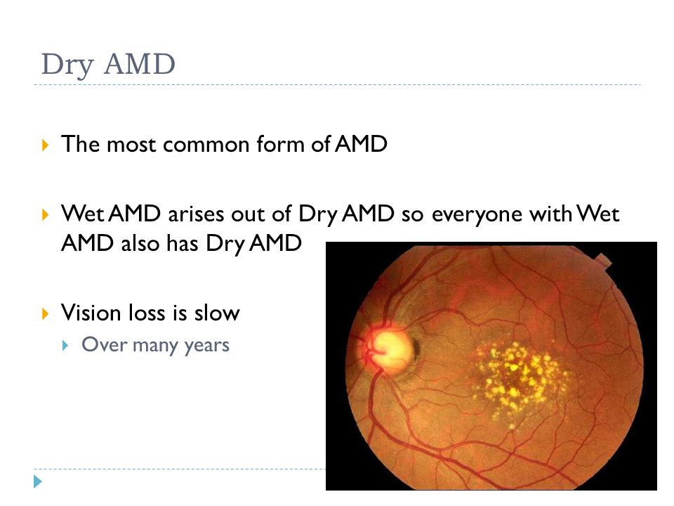 Dry AMD The most common form of AMD