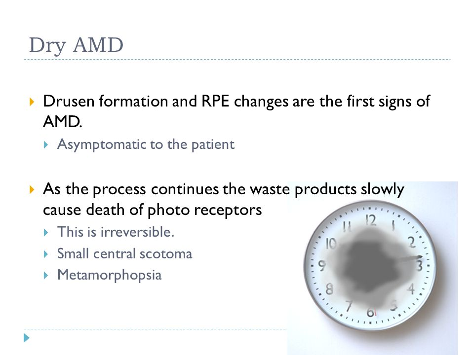 Dry AMD Drusen formation and RPE changes are the first signs of AMD.