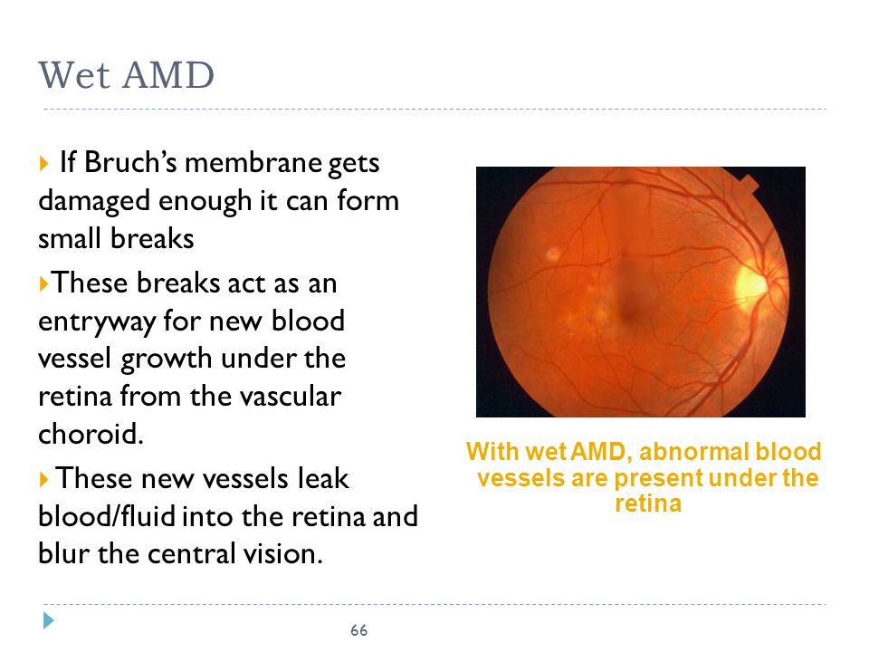 With wet AMD, abnormal blood vessels are present under the retina