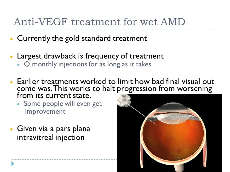 Anti-VEGF treatment for wet AMD