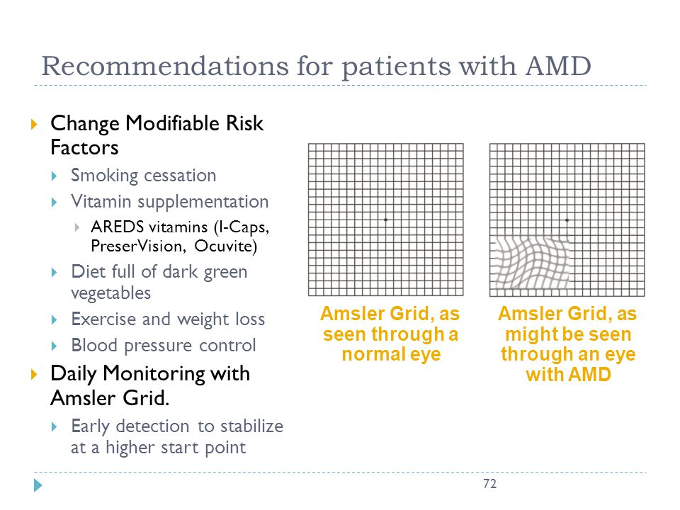 Recommendations for patients with AMD