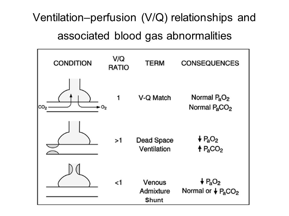 Ventilation–perfusion (V/Q) relationships and associated blood gas abnormalities