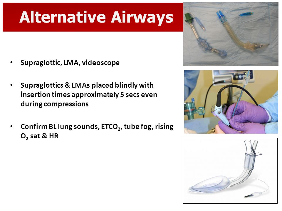 Alternative Airways Supraglottic, LMA, videoscope