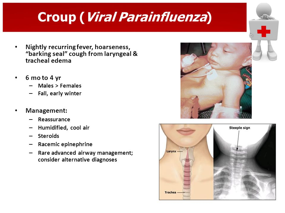Croup (Viral Parainfluenza)