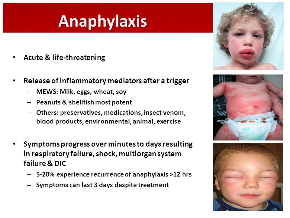 Anaphylaxis Acute & life-threatening