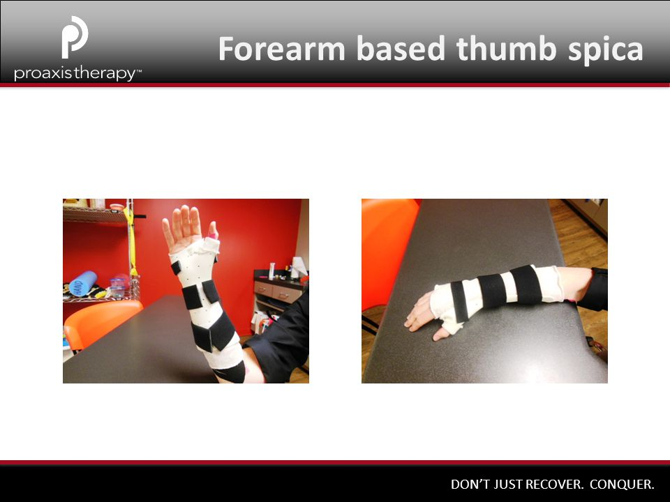Forearm based thumb spica
