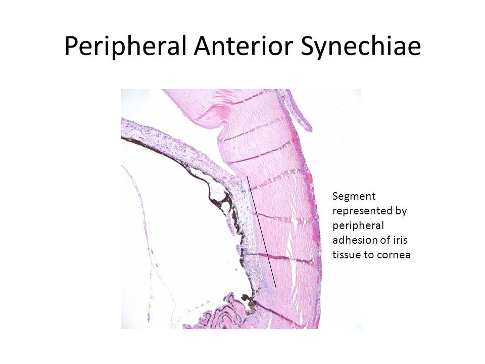 Peripheral Anterior Synechiae