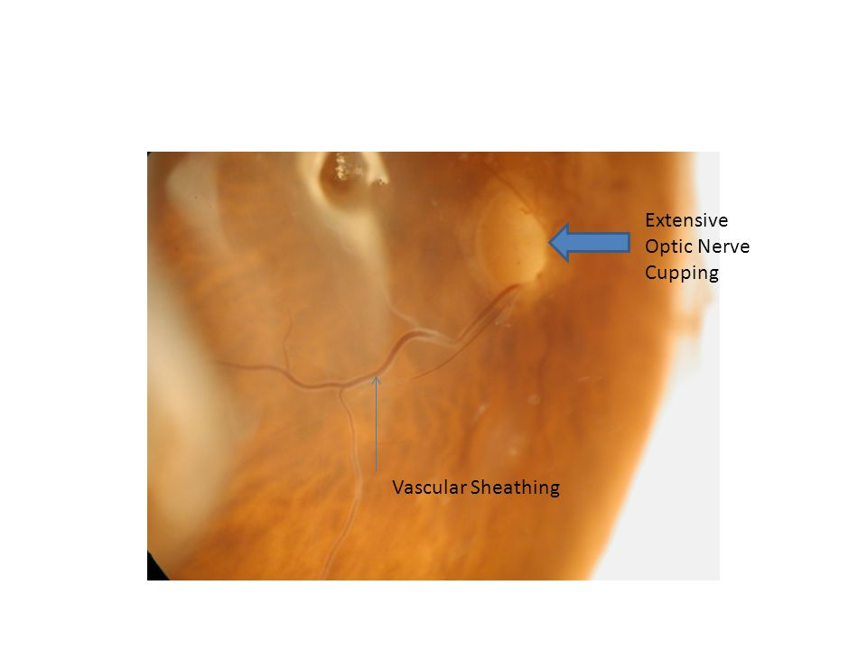 Extensive Optic Nerve Cupping