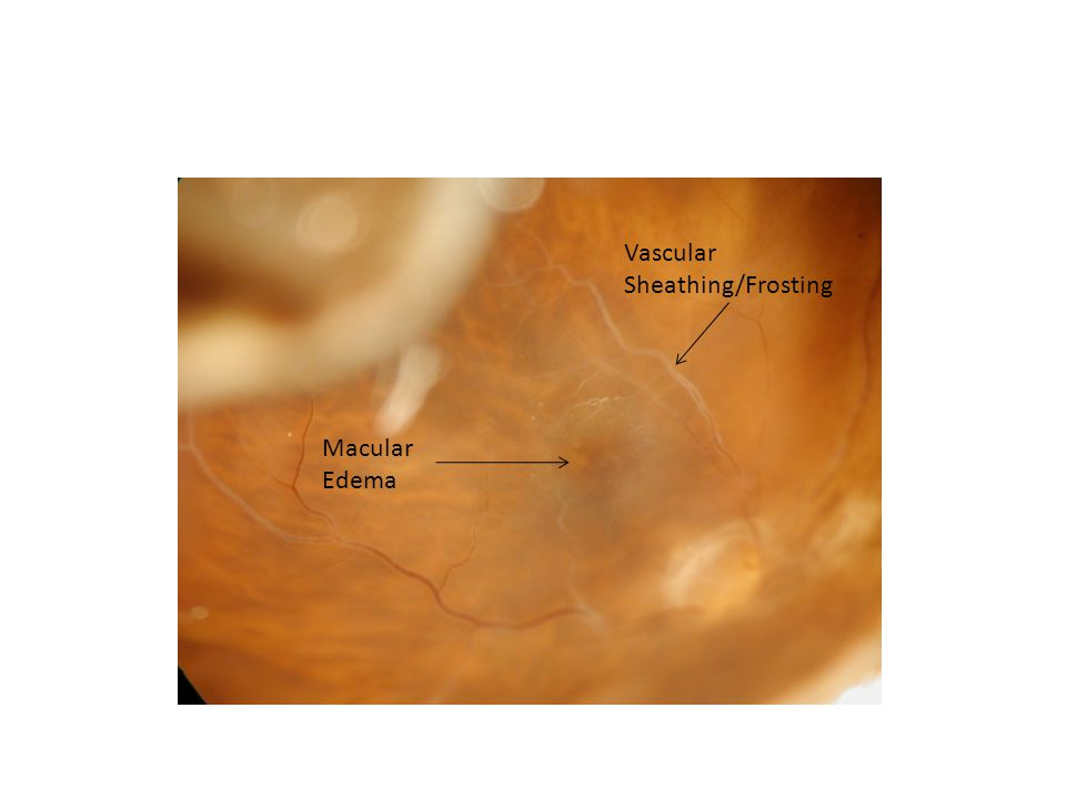 Vascular Sheathing/Frosting