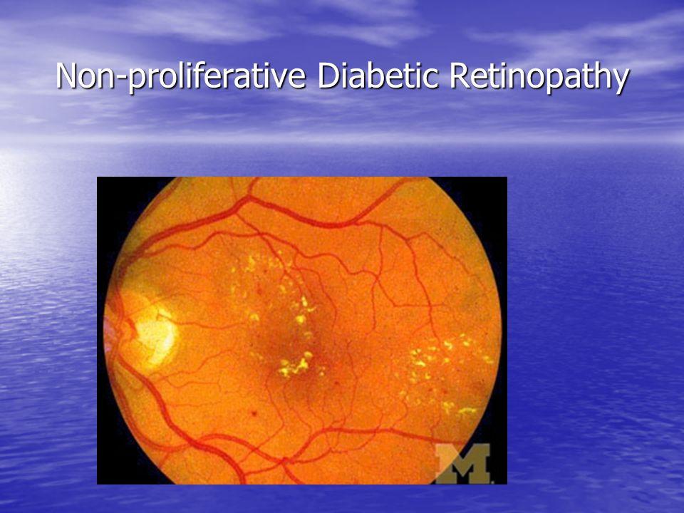 Non-proliferative Diabetic Retinopathy