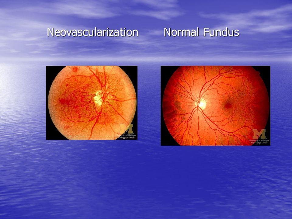 Neovascularization Normal Fundus