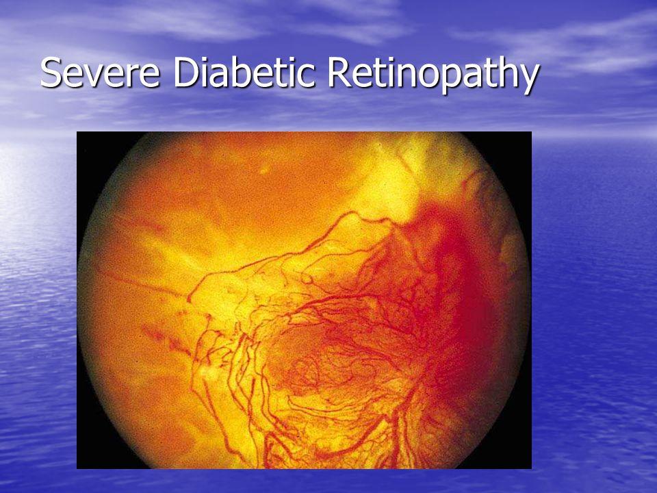 Severe Diabetic Retinopathy