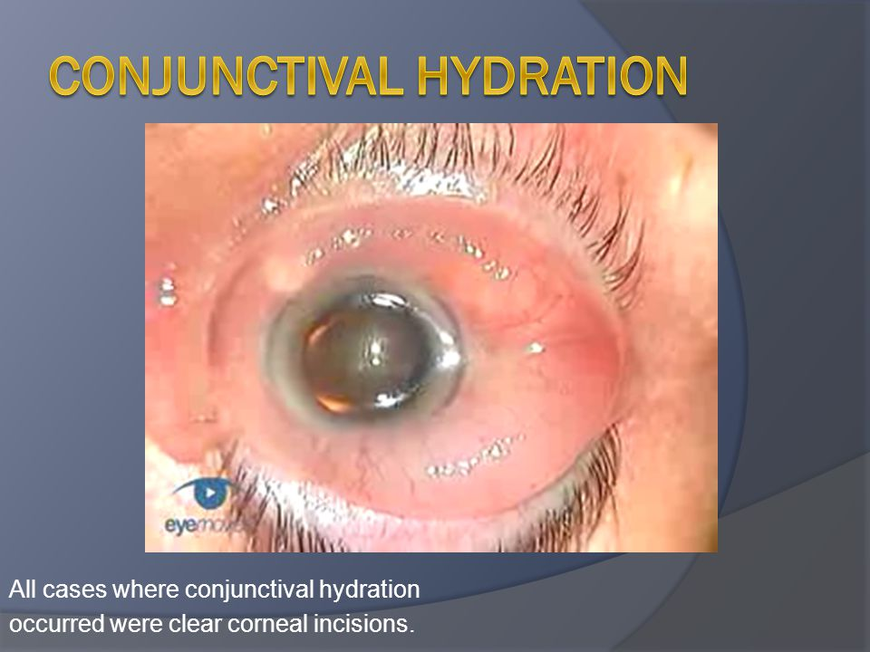 Conjunctival hydration