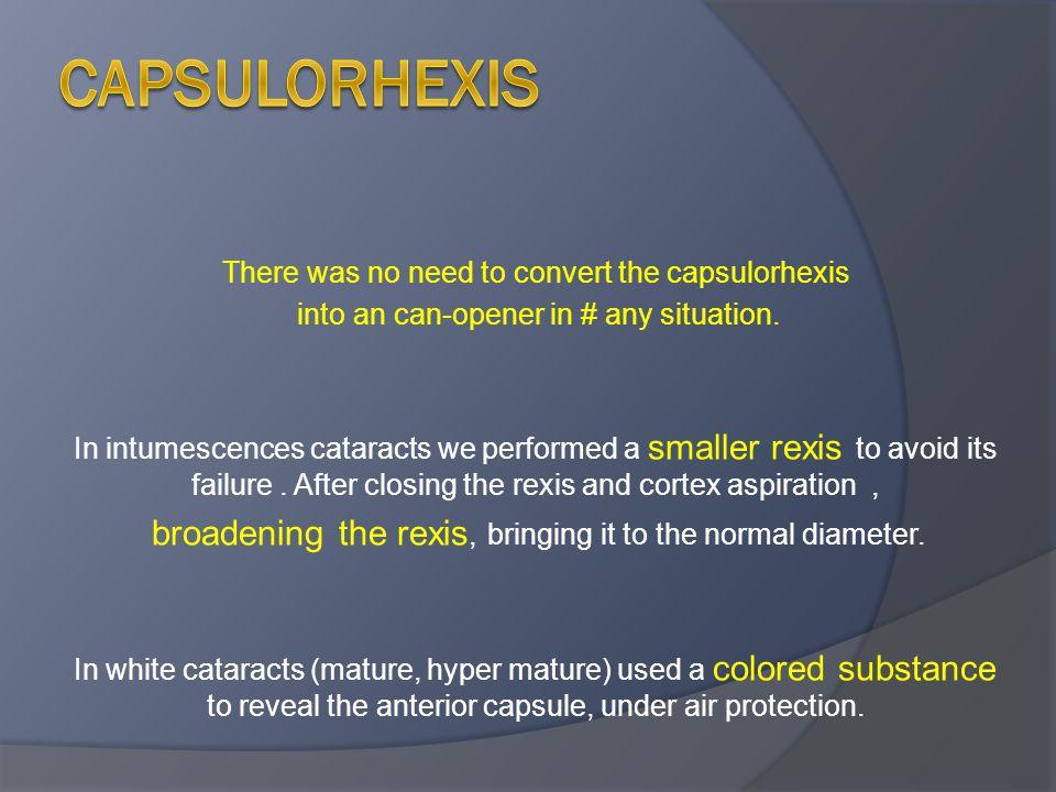 Capsulorhexis There was no need to convert the capsulorhexis