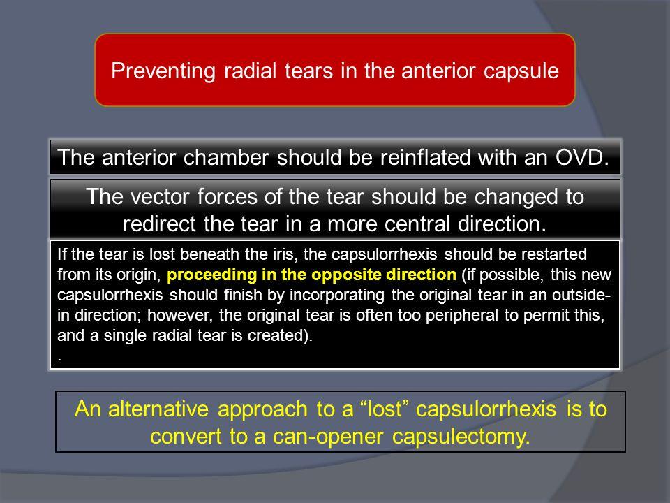 Preventing radial tears in the anterior capsule