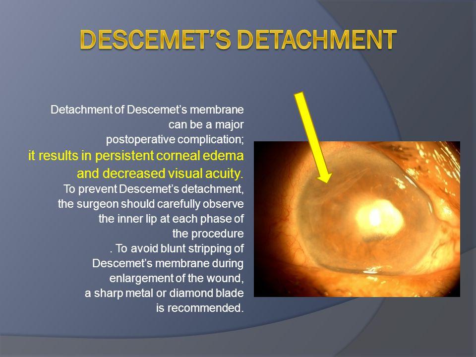 Descemet's Detachment