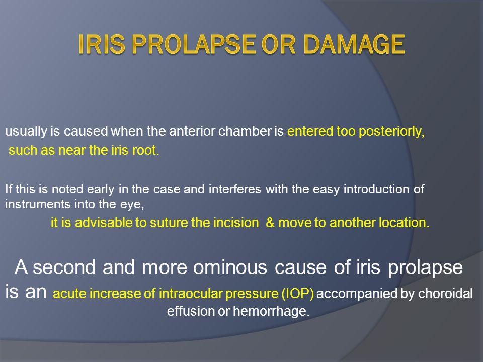 Iris prolapse or damage