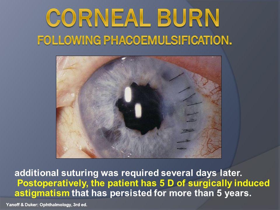 Corneal burn following phacoemulsification.